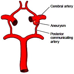 A cerebral aneurysm in the circle of Willis