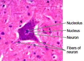 A typical neuron as seen under the microscope