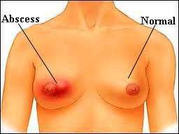 Abscess breast