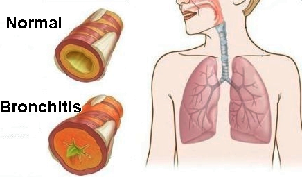 Acute Bronchitis Or Chest Cold Is A Condition That Occurs