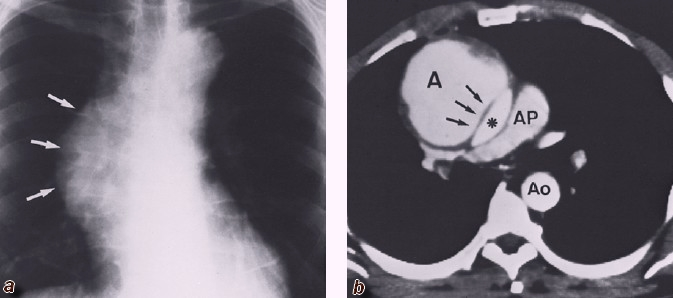 Aortic dissection of the ascending aorta