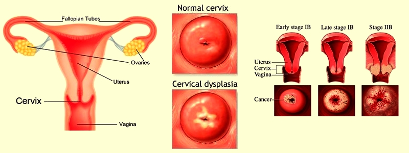 Join told is cervical penetration possible