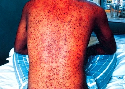 Chicken pox in an adults
