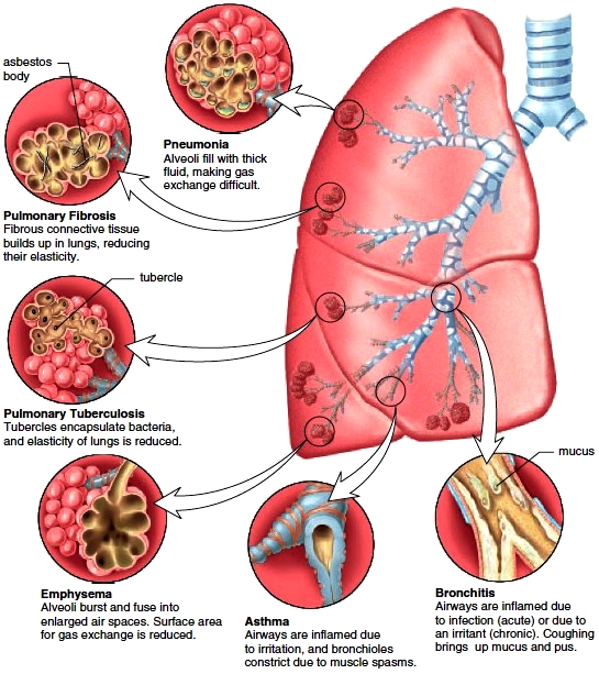 Common bronchial and pulmonary diseases