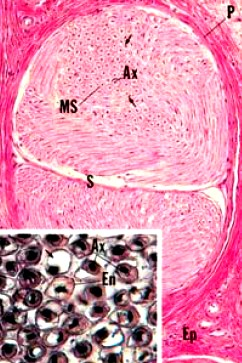 Cross section of a nerve