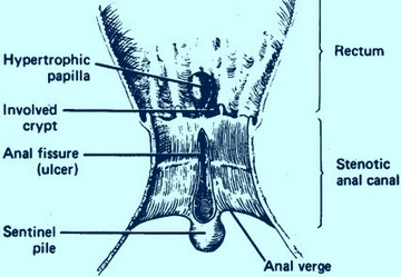 Diagram of the anorectum