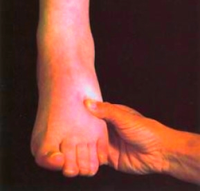 Edema of the foot