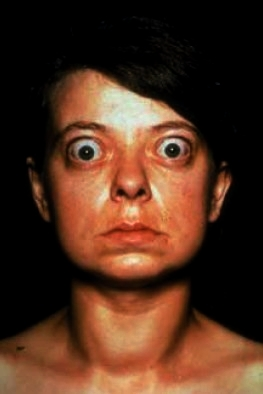 Graves disease showing goiter and exophthalmos