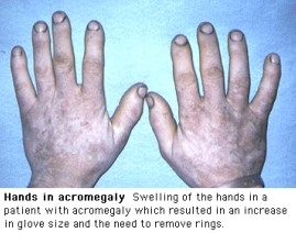 Hands in Acromegaly