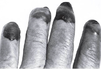 Necrotic spots on the fingers