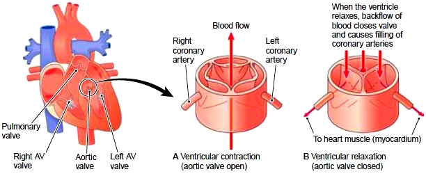 Opening of coronary arteries in the aortic valve (anterior view)