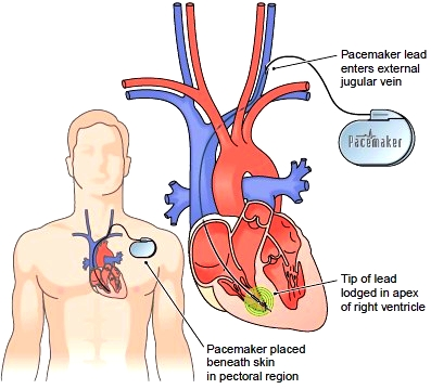Placement of an artificial pacemaker