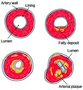 Stages in atherosclerosis