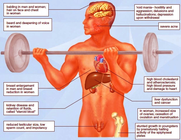 The effects of anabolic steroid use
