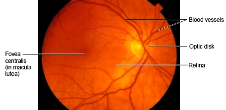 The fundus (back) of the eye as seen through an ophthalmoscope