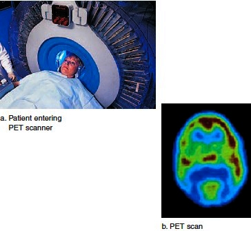 Use of radiation to study the brain