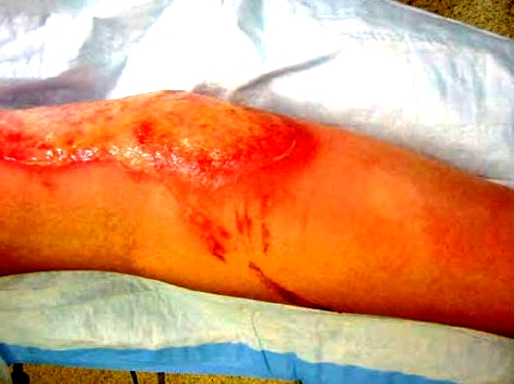 burn wound of the arm